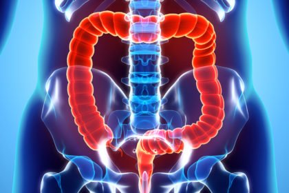Racial differences in colorectal cancer incidence not due to biology